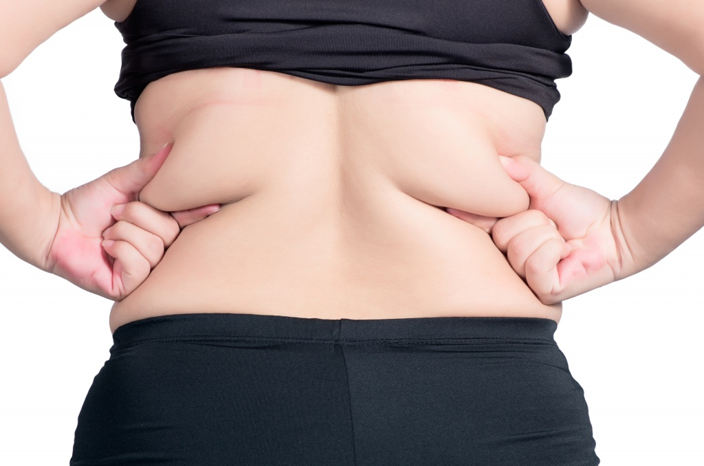 What-is-the-Liposuction-in-fibrous-back-fat.jpg